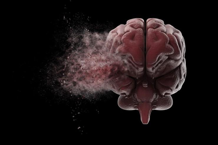 Brain Image.jpeg