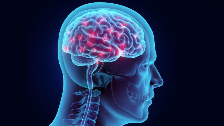 Brain Image2